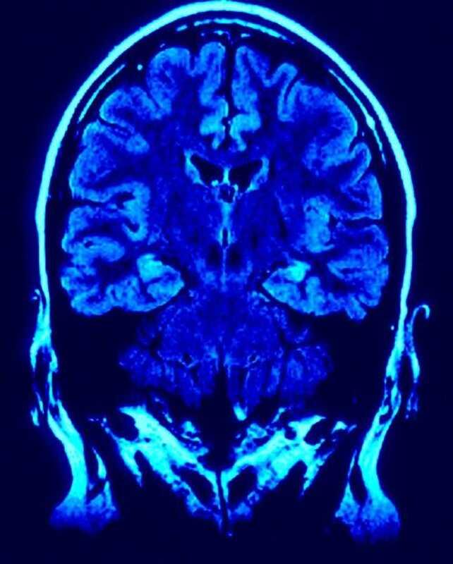 Construeix un cervell resistent a lestrès: troballes i estratègies