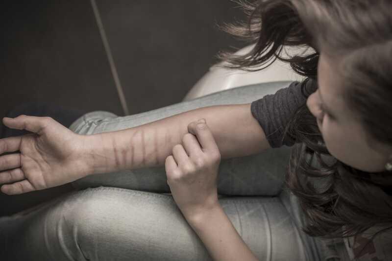 Teen řezání a sebe-zranění: Proč to dělají?