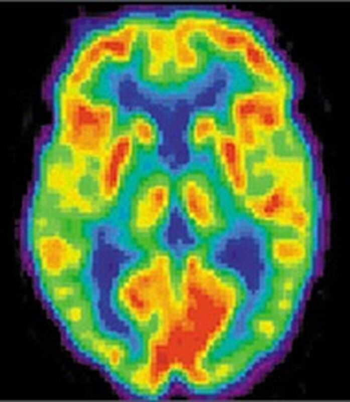 Μπορούμε να εμπιστευτούμε τη νευροεπιστήμη;