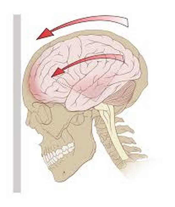 Da li antidepresiv može sprečiti depresiju nakon traumatske povrede mozga?